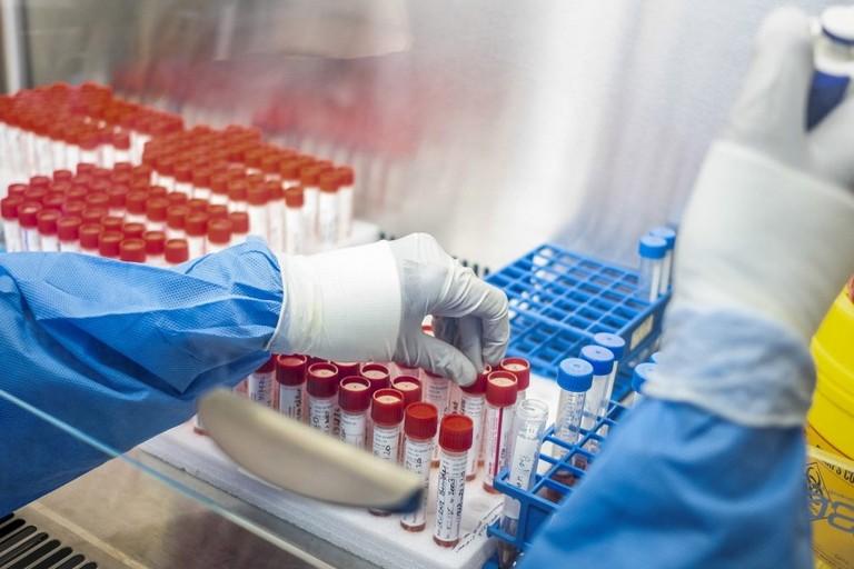 Analisi di laboratorio (repertorio)